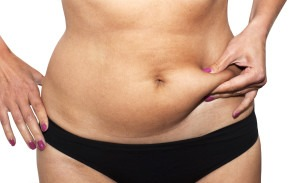 Is it easier to lose weight after liposuction? | Huntsville
